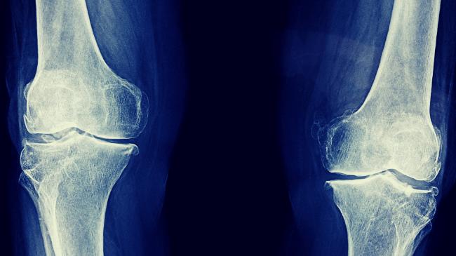 勤務中に筋トレして足を骨折した際のレントゲン